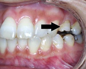 夜 に なると 歯 が 痛く なる